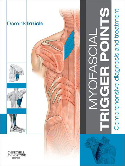 myofascial triggger point essay Self-massage and myofascial trigger point release fascia is a connective tissue that is found within the whole body it is made of collagen and creates a structural support.